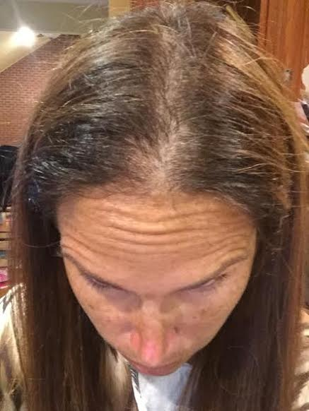unnamed 33 Fighting Female Hair Loss with Scalp Med®