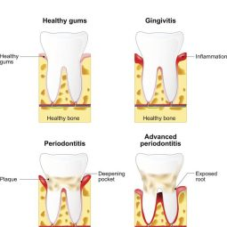Gingivitis vs Periodontitis: What's the difference?