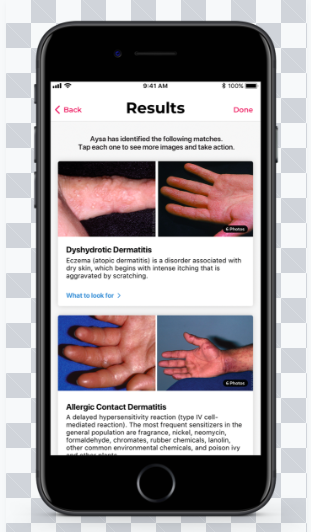 Aysa-Amazing App to help you figure out Skin Conditions!!